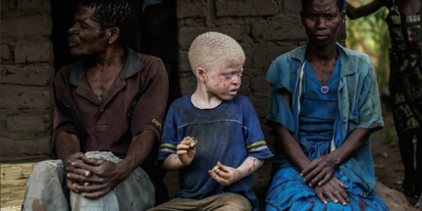 Un enfant albinos avec ses parents, le 17 avril 2015, dans le district de Machinga, dans le sud du Malawi.