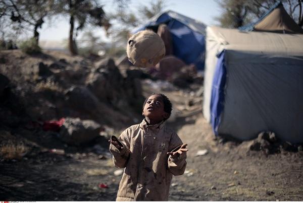 Un enfant dans un camp de déplacés en bordure de Sanaa, au Yémen, le 8 juin 2016 (image d'illustration).