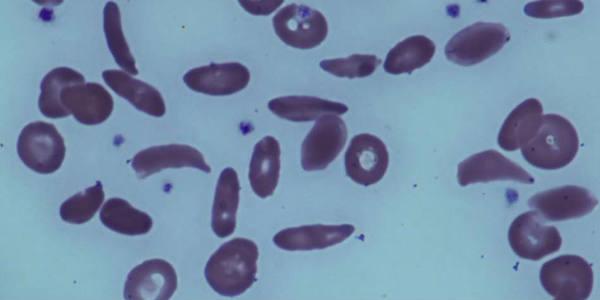 Image de microscope montrant les globules rouges en forme de faucille d'un patient atteint de drépanocytose.