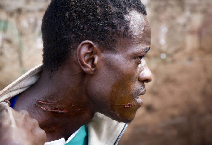 Un homme blessé lors d'affrontements avec la police attend d'être soigné dans le bidonville de Kibera, à Nairobi. Darko Bandic/AP/SIPA