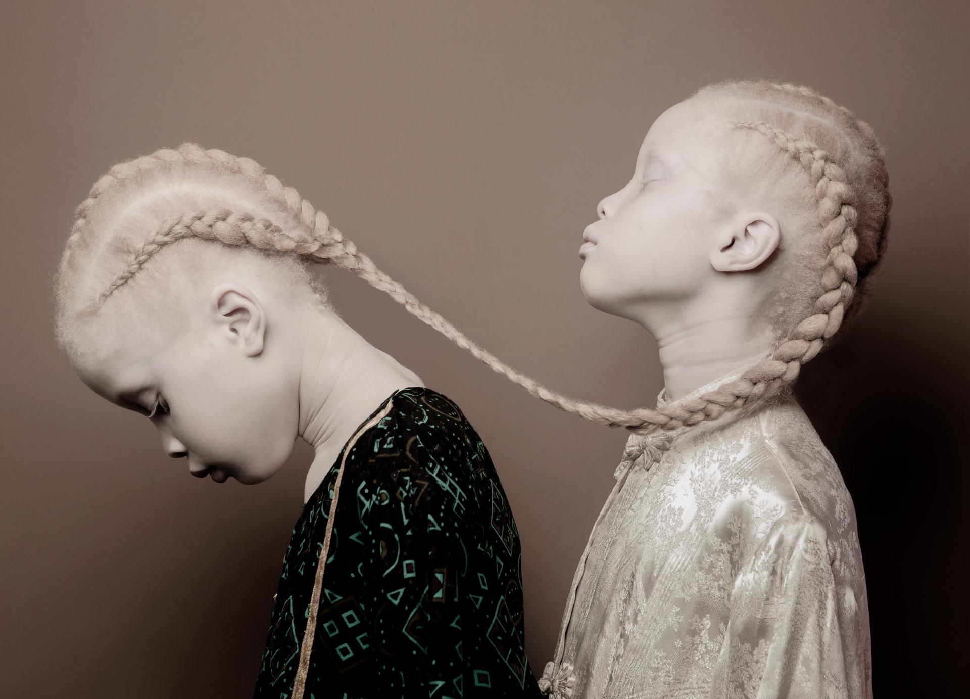 Les jumelles Bawar posent pour la série