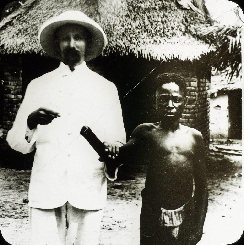 """Un missionnaire de la mission Congo Balolo, avec une jeune victime de la pratique du """"couapge des mains"""", en vigueur pendant la colonisation belge (Photo non datée, probablement prise entre 1880 et 1900)."""