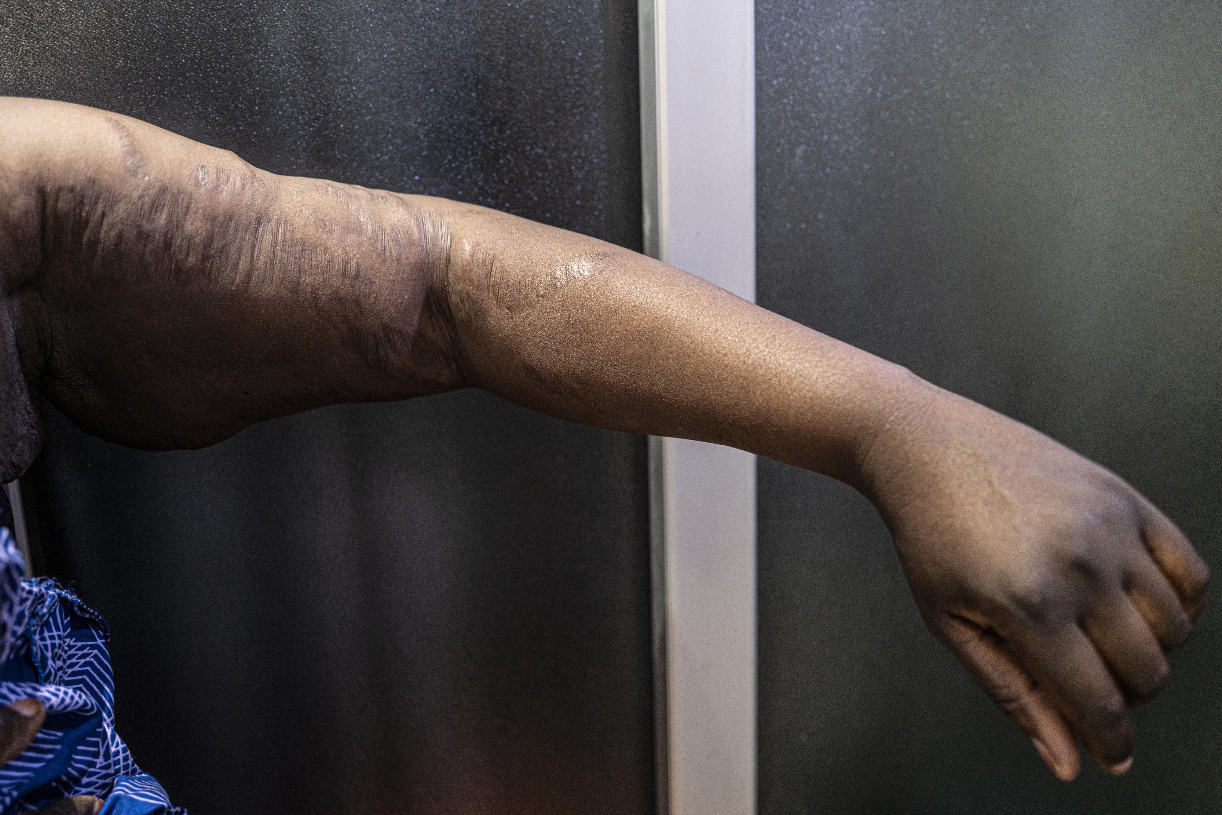 Le salon de beauté Beauty Chic by Tola promet aux femmes à la peau abîmée par le khessal de les soigner. Une cliente montre des vergetures sur sa peau, conséquence d'un traitement éclaircissant.