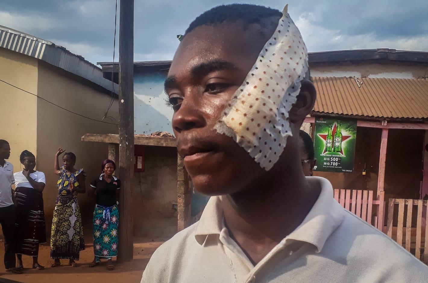 Daniel, un jeune dida blessé à la machette le 21 août.