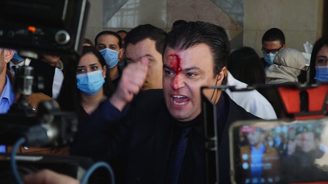 Le député tunisien Anouar Bechahed du Bloc démocratique a été passé à tabac au su et au vu de tous par les élus d'El Karama, le 7 décembre à l'Assemblée.